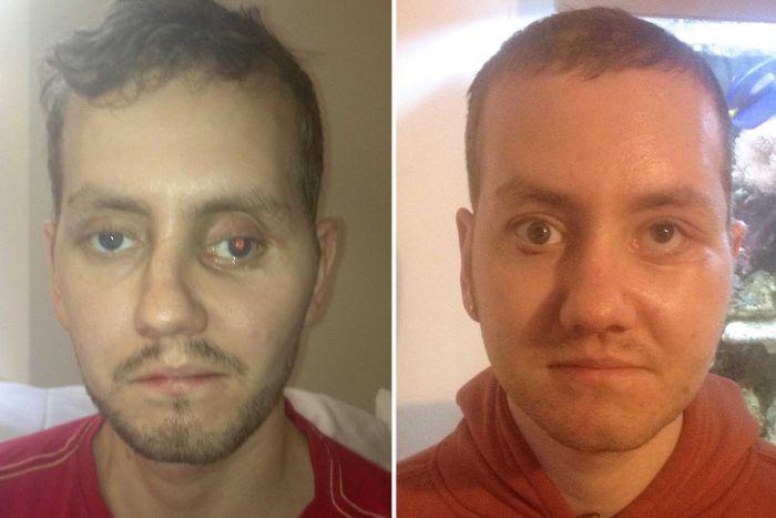 Paciente de cirugía facial con impresión 3D gracias a la innovación para el éxito empresarial
